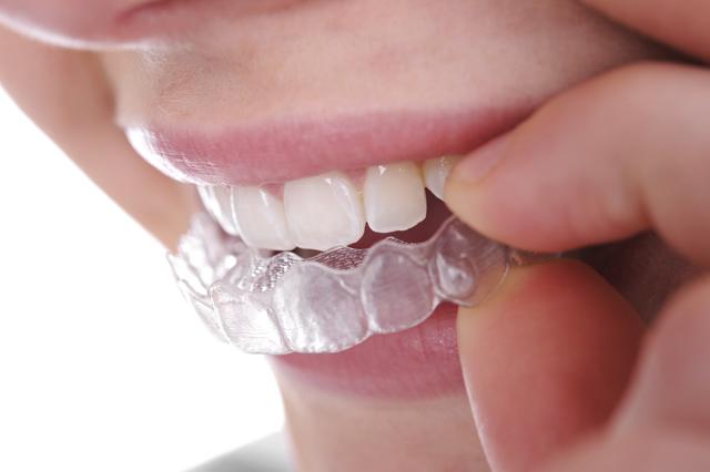 usynlig tannregulering